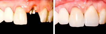 M L Crowe Ipswich Dental Implants