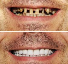 Ipswich Cosmetic Dentist Crowns Veneers Ipswichdentist